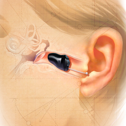Invisible-Hearing-Devices-1