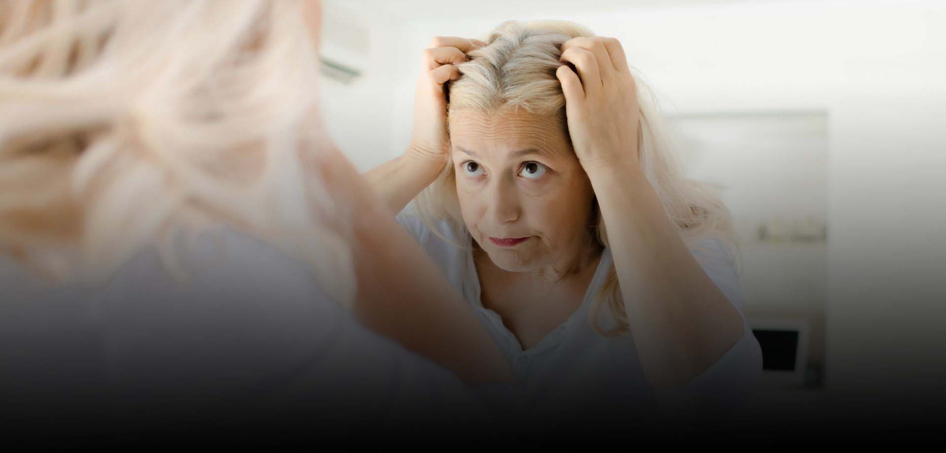 At remove dandruff home to naturally how Dandruff Home